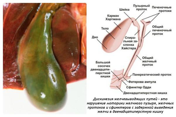 Дискинезия желчевыводящих путей у ребёнка