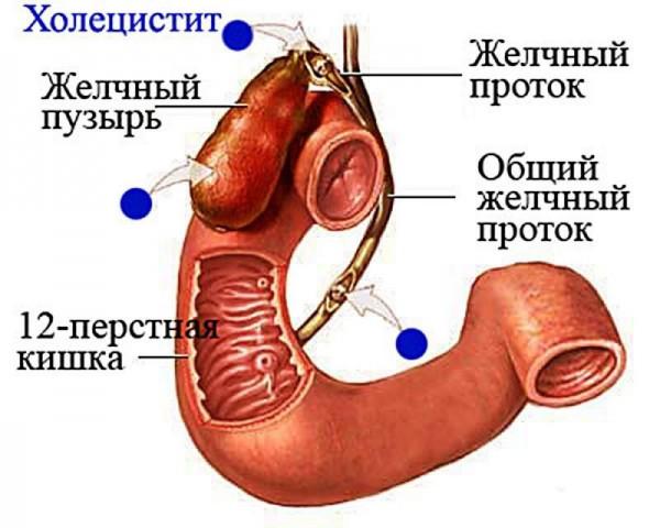 Чем является воспаление желчного пузыря?