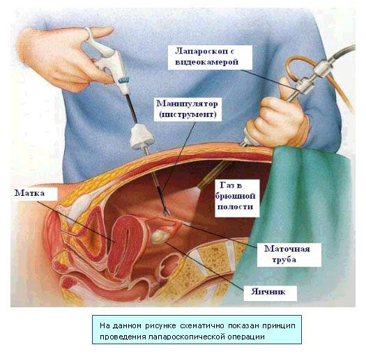 Лапароскопическая холецистэктомия