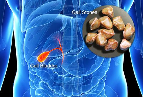 Размеры камней в желчном пузыре