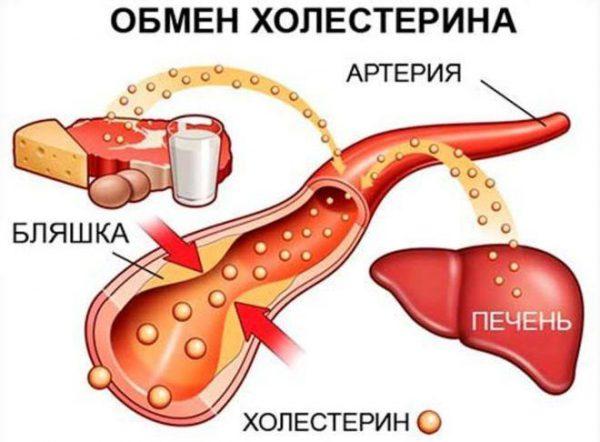 Роль холестерина в возникновении желчных камней