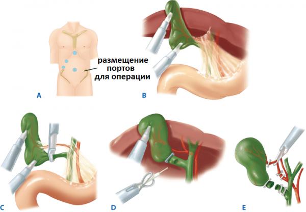 Лапароскопия желчного пузыря противопоказания