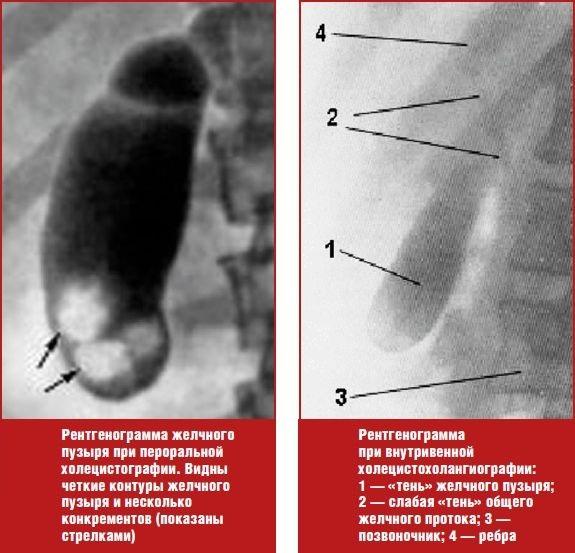 Рентген желчного пузыря