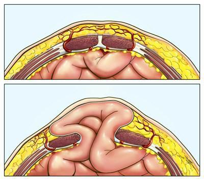 Послеоперационная грыжа после удаления желчного пузыря