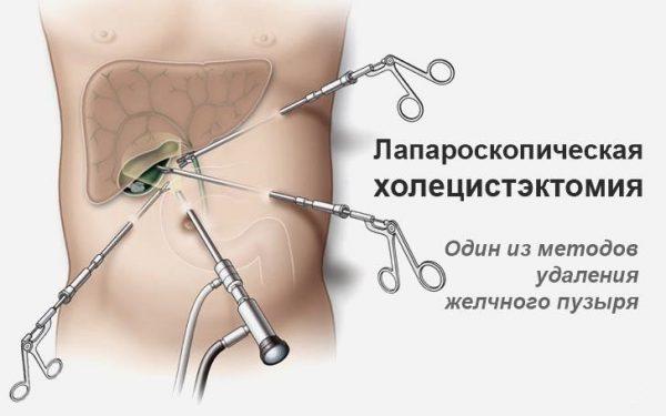 Повторная операция после удаления желчного пузыря