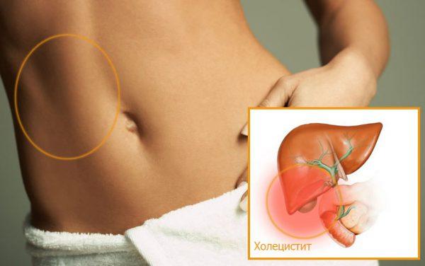 Симптомы воспаления желчного пузыря у женщин