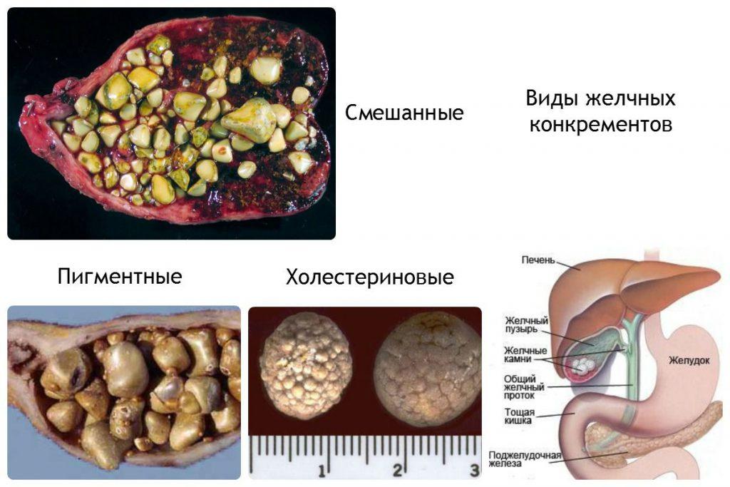 Разновидности камней в желчном пузыре