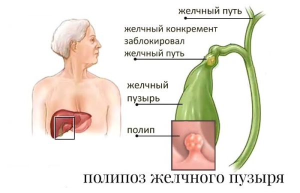 Питание при полипах в желчном пузыре