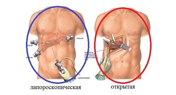 Полосная операция желчного пузыря