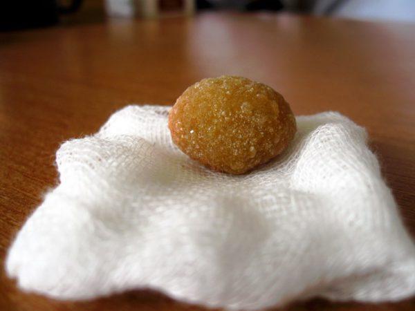 Стоит ли удалять желчный пузырь если есть камни?