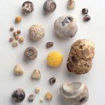 Обезболивающее при камнях в желчном пузыре