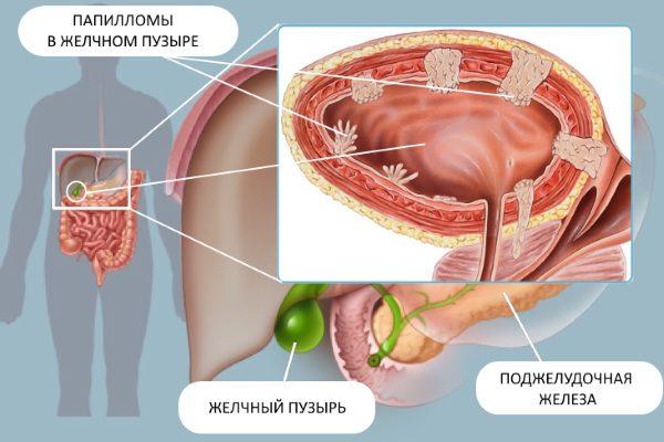 Папилломы в желчном пузыре