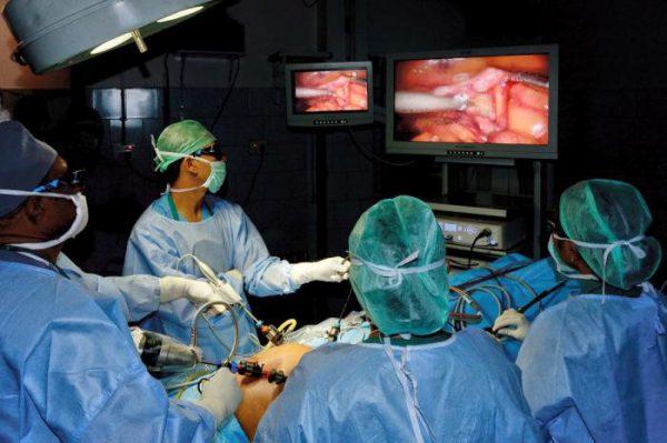 Лапароскопическая операция камней в желчном пузыре
