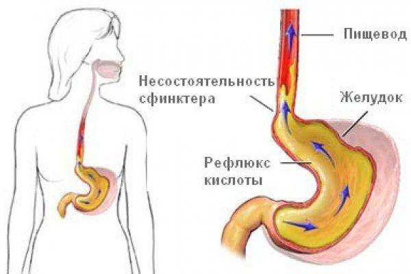 Желчный рефлюкс лечение