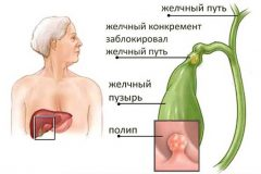 Холестериновый полип желчного пузыря