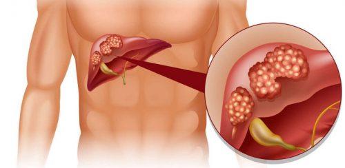 Симптомы и лечение без операции камней и полипов в желчном пузыре