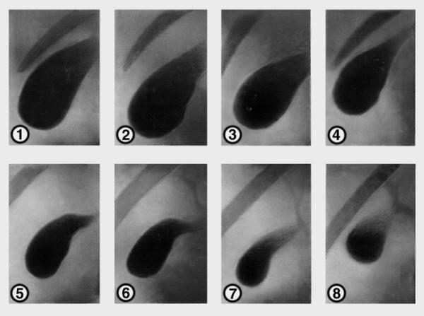 Гистология желчного пузыря