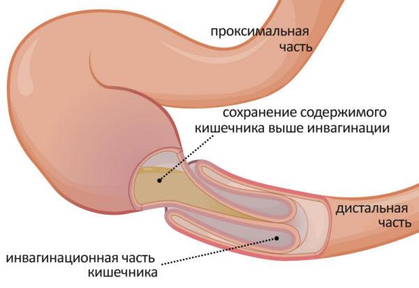 Желчные камни в кишечнике