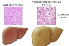 Гепатоз желчного пузыря
