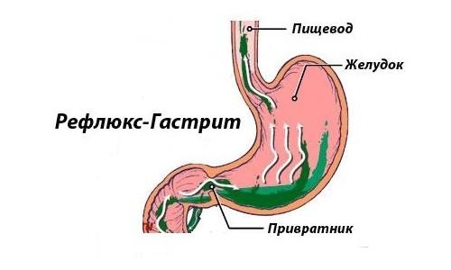 Лечение желчного гастрита