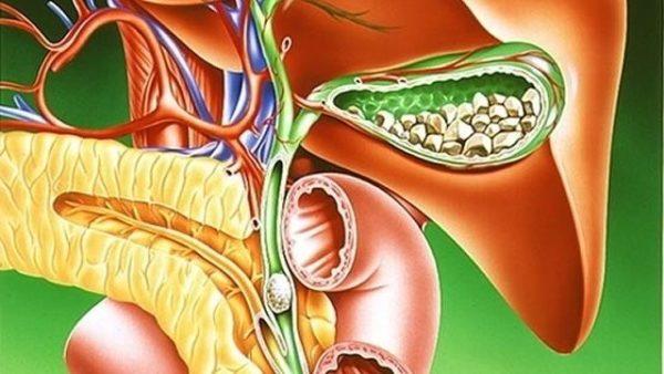 Диета при обострении заболеваний желчного пузыря