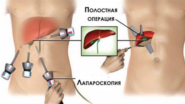 Восстановление после удаления желчного пузыря